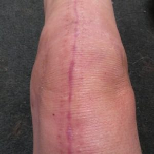 post-surgery-scar-before-science of -skin-solution-for-scars-harley-street-emporium-shop