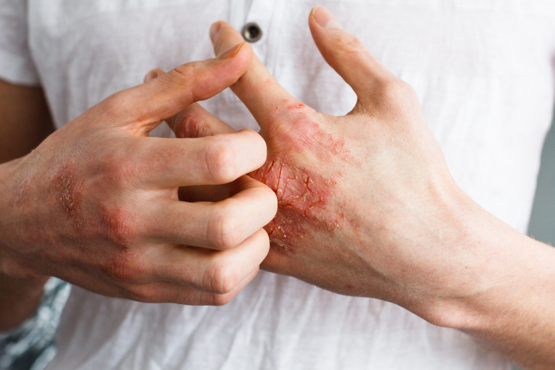 eczema-hands-journal-harley-street-emporium