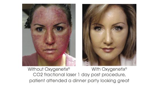 oxygenetix-before-and-after-foundation-shop-harley-street-emporium
